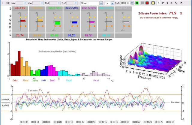 Neurofeedback Qeeg In Mapping Cost on